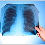 長期間の大麻吸引と肺疾患との関連を否定する研究結果が相次ぐ